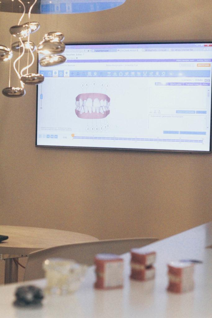 Zahnspange-Erwachsene-Erfahrung-Unsichtbare-Zahnspange-Schienen-Smilike-Hamburg-Lifestyle-Blog-Deutschland-Gerade-Zaehne-ohne-Schmerzen